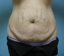 los angeles tummy tuck before surgery