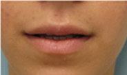 los angeles lip augmentation