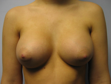 Breast augmentation in Los Angeles