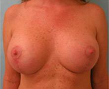 Breast Lift Los Angeles