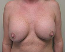 Los Angeles breast lift