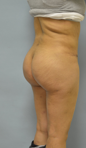 buttock fat transfer los angeles