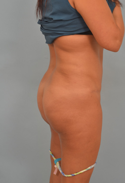 buttock augmentation in Los Angeles