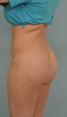 Brazillan butt lift in los angeles