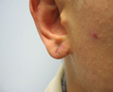Los Angeles earlobe repair