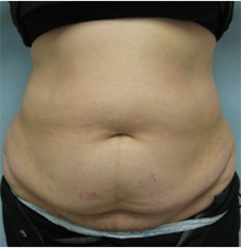 los angeles mommy makeover tummy tuck los angeles