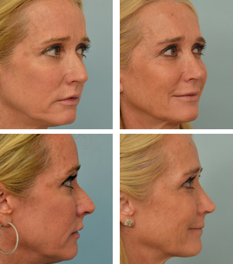 Beverly Hills Rhinoplasty patient