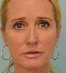 Kim Richards rhinoplasty by Dr. Grigoryants