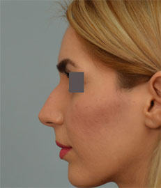Dr. Grigoryants rhinoplasty cost