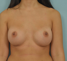 Breast Augmentation - Dr Vladimir Grigoryants