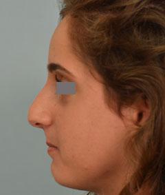 Rhinoplasty, tension lip, Dr. Grigoryants