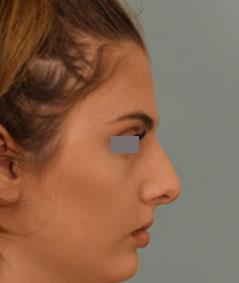 Dr. Grigoryants rhinoplasty