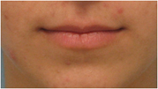 lip augmentation los angeles
