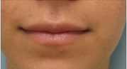 lip implants los angeles