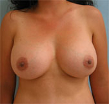 beverly hills breast augmentation