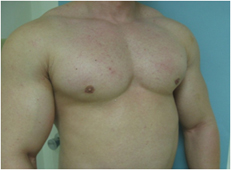 male breast surgery los angeles