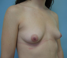 Breast enlargement glendale pasadena