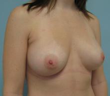 Breast enhancement in Glendale pasadena