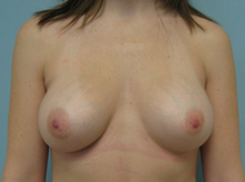 breast enlargement pasadena Glendale