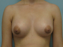 Breast augmentation Burbank Encino