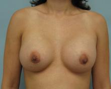 breast augementation beverly hills