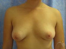 los angeles breast augmentation
