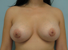 breast augementation los angeles