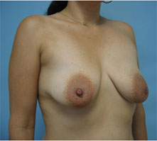 Breast lfit glendale, pasadena los angeles