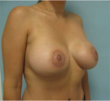 breast lift encino