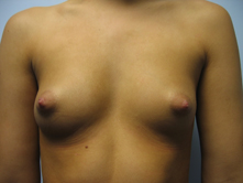 Beverly Hills breast augmenation
