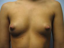 Los angeles breast augmenation