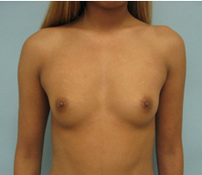 breast implants pasadena
