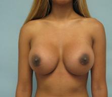 breast implants pasadena