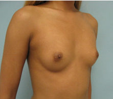 breast implants glendale burbank