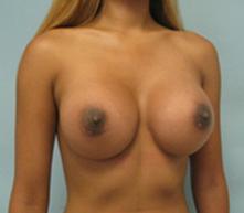 breast augmentation pasadena