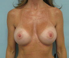 breast surgery after photo