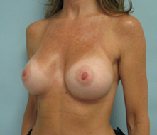 breast implants encino
