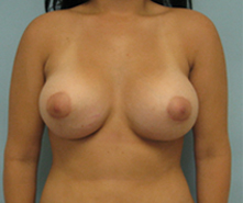 breast enlargement thousand oaks after photo