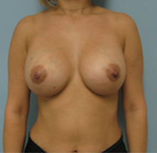 los angeles breast augmentation