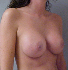 breast implants after photo
