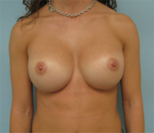 los angeles breast revision surgery