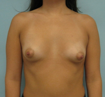 breast enlargement in Los Angeles