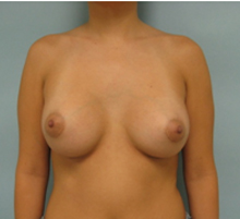 Los Angeles breast enlargement