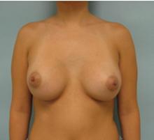 Los Angeles breast enlargement