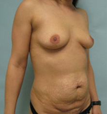 breast enlargement and tummy tuck