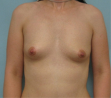 breast enhancement beverly hills