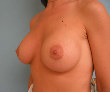 Saline breast augmentation in Los Angeles