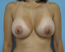 breast enlargement los angeles