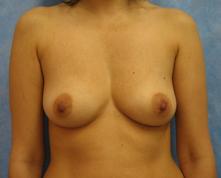 breast enlargement los angeles