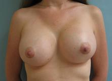 Calabasas breast enlargement
